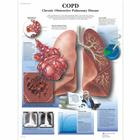 COPD Chronic Obstructive Pulmonary Disease, 4006678 [VR1329UU], Sistema Respiratório